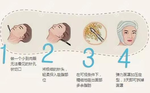 面部吸脂过程图