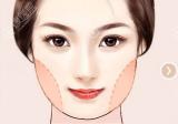 脸大婴儿肥想瘦脸做面部吸脂和光纤溶脂哪个效果好?