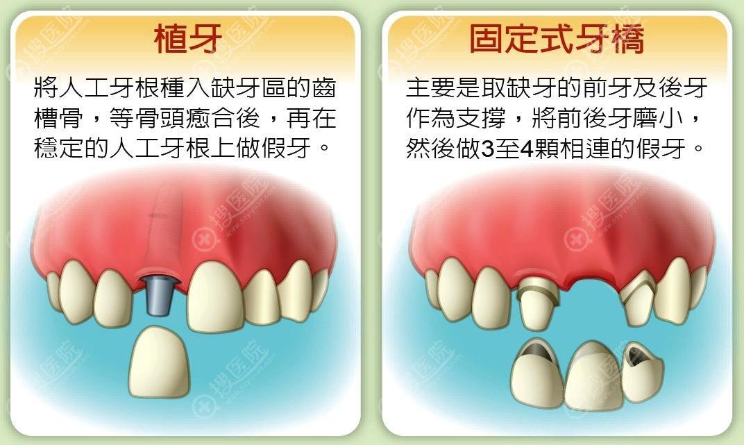 掉一颗牙补救的方法