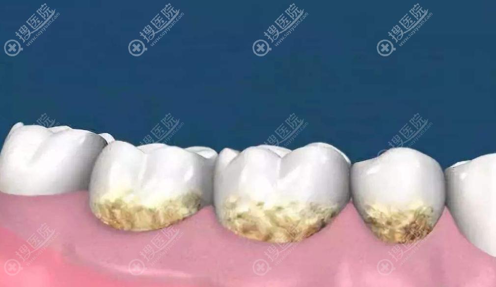 牙菌斑的形成