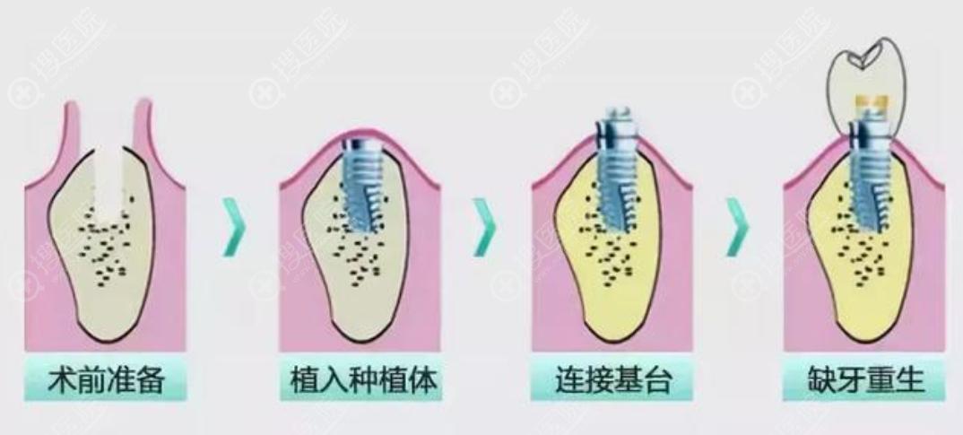 种植牙手术过程