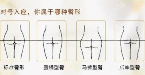 臀部类型图