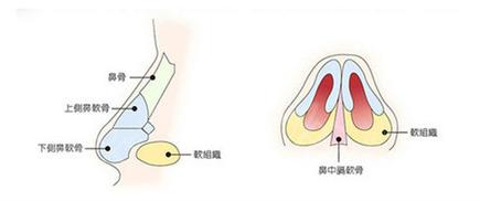 鼻子做耳软骨吸收率15%左右,可以长久维持不会三年全部吸收掉哦