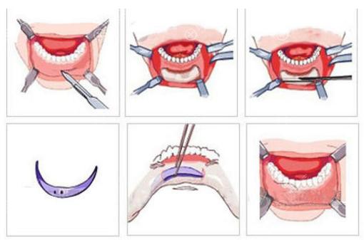 假体垫下巴手术过程图