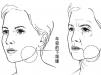 你对小切口面部提升手术真的了解吗?那么SMAS和MACS有什么区别