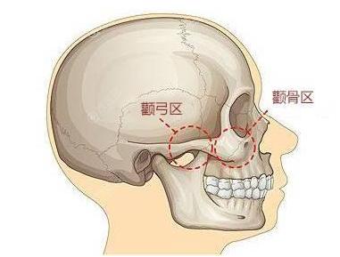 颧弓颧骨示意图