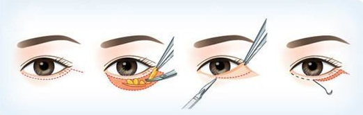 外切祛眼袋示意图