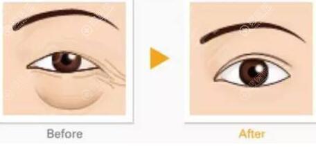 激光祛眼集散对比效果