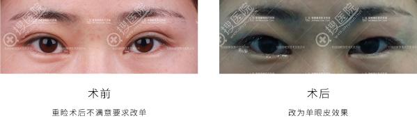 杜园园双眼皮修复案例