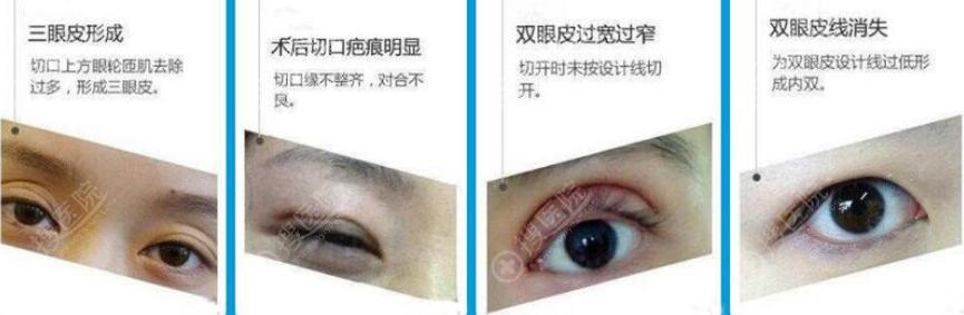 双眼皮失败修复类型