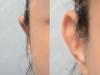 贴发耳矫正手术大概多少钱?顺带了解下耳朵往后贴的矫正方法