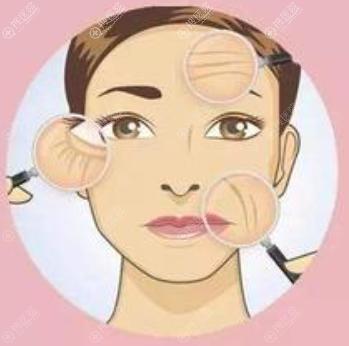 面部衰老用4D网格面部提升还是埋线提升