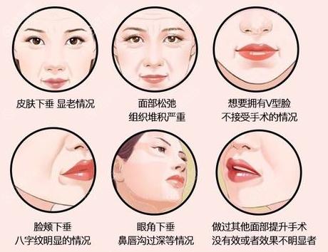 皮肤衰老类型