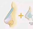 二次鼻修复后肋骨鼻鼻尖发白好担心会顶出,需要再次修复吗?