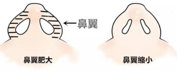 鼻翼缩小对比图