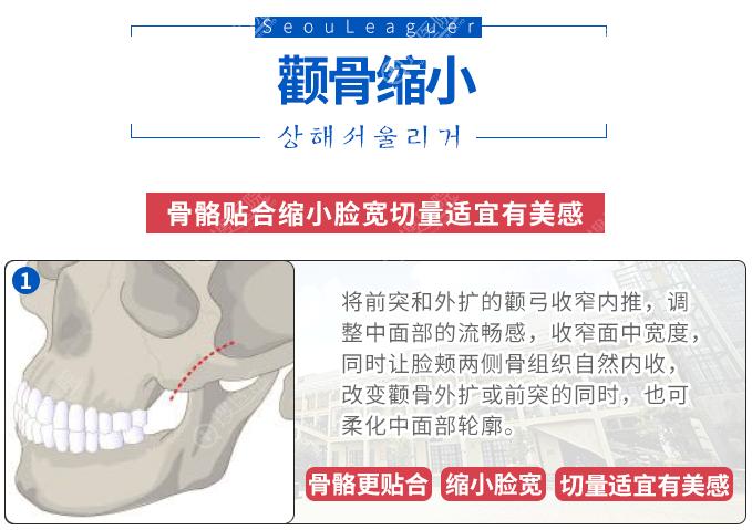 颧骨缩小手术原理