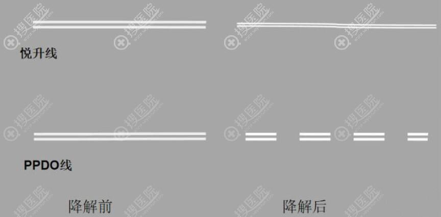 悦升线和普通线分解前后示意图