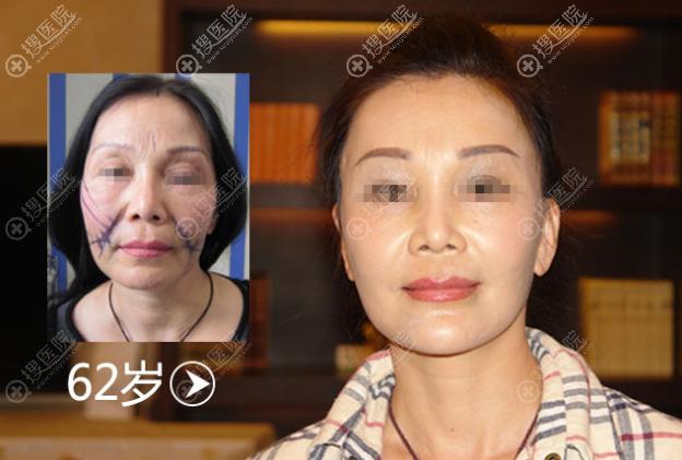 北京加减美穆宝安v美减龄案例