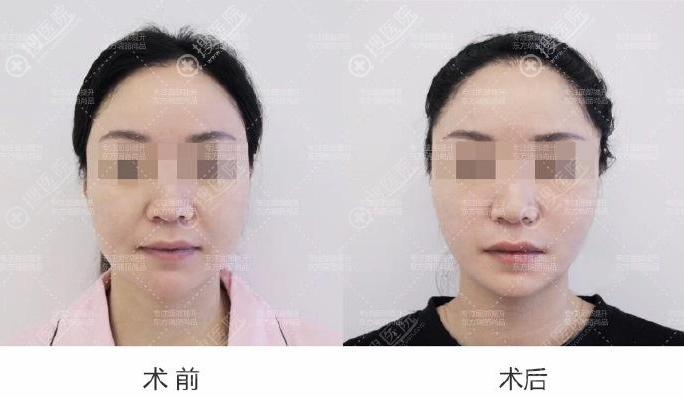 北京东方瑞丽PST面部提升案例
