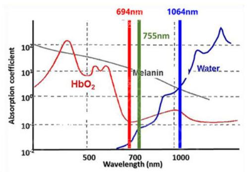 红宝石694激光祛斑波长示意图