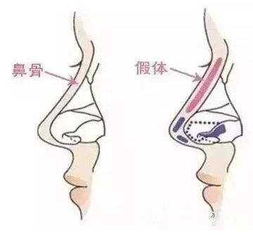 假体隆鼻出现排异怎么办呢?