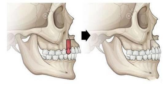 骨性凸嘴做正颌手术改善手术过程图