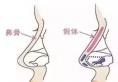假体隆鼻出现排异现象,取出后还能再次做肋骨鼻吗?