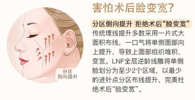 正规机构避免埋线提升做完脸又宽又不对称的方法