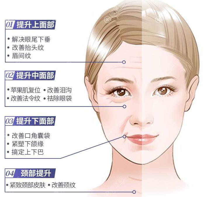 面部埋线提升不同部位