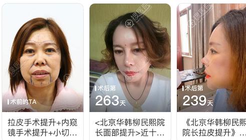 北京华韩柳民熙面部拉皮手术案例