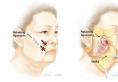 面部拉皮手术多少钱?做完大拉皮手术脸部麻木多久能恢复有感觉