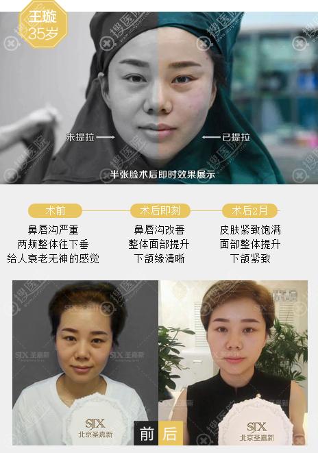 北京圣嘉新李朕青春支架术案例效果