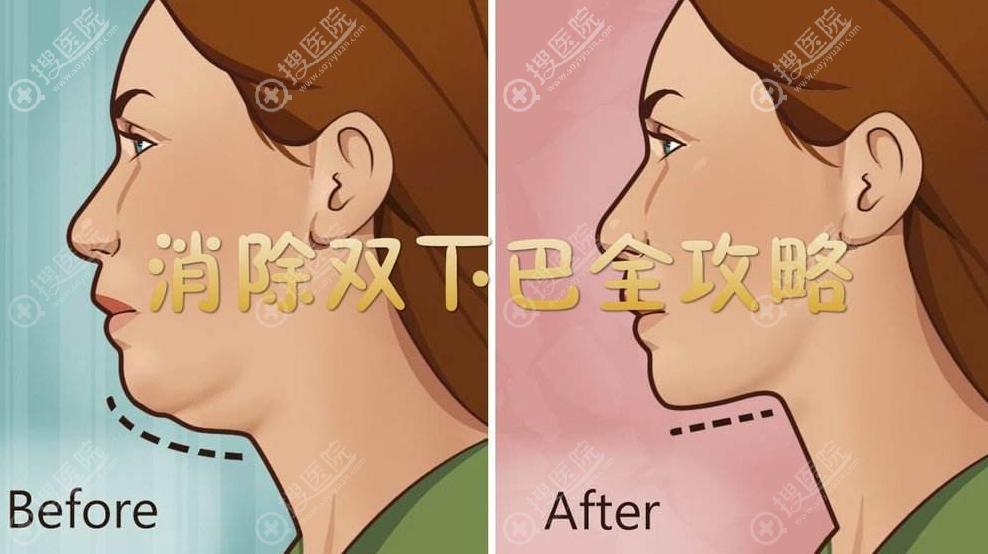 下颌缘吸脂前后对比效果
