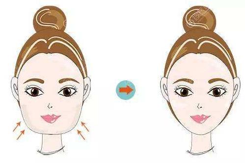 面部吸脂用黄金微雕和热玛吉哪个效果好?