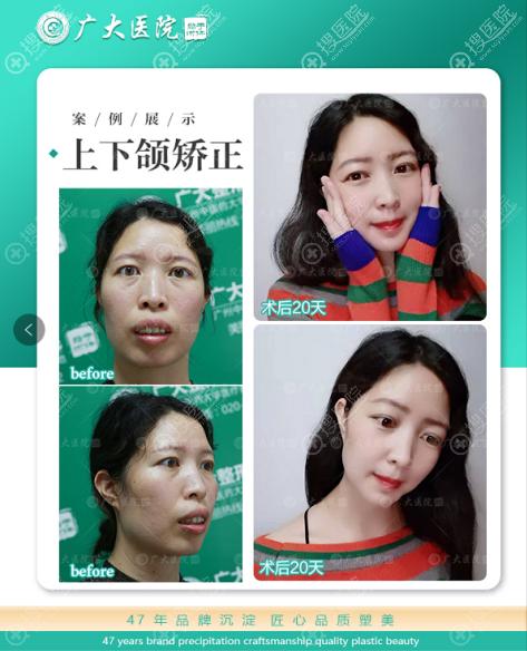 广州广大何锦泉教授做的正颌手术案例