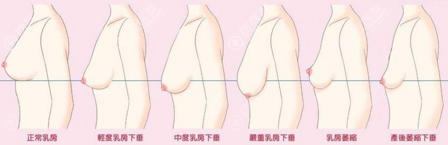 胸部不同下垂程度示意图