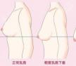 胸有点下垂适合做水滴假体比较自然,不推荐圆形假体哦