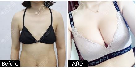 北京东方和谐孙泽芳医生自体脂肪丰胸案例