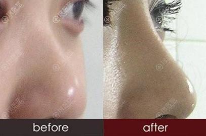 膨体隆鼻对比效果