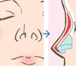 膨体加耳软骨隆鼻即不会下滑,塑形效果也接近自然