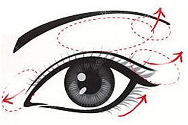 第三次修复双眼皮能成功吗?