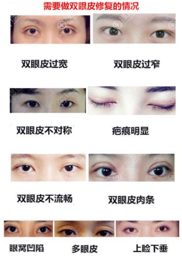需要做双眼皮修复的类型