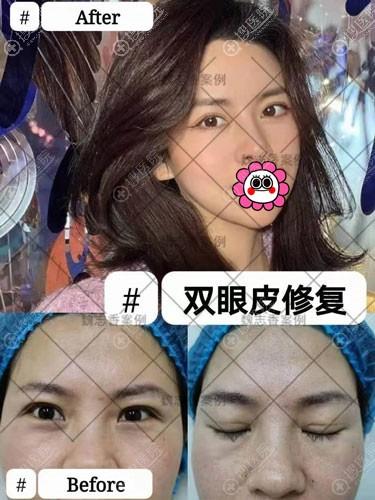 魏志香双眼皮疤痕修复案例