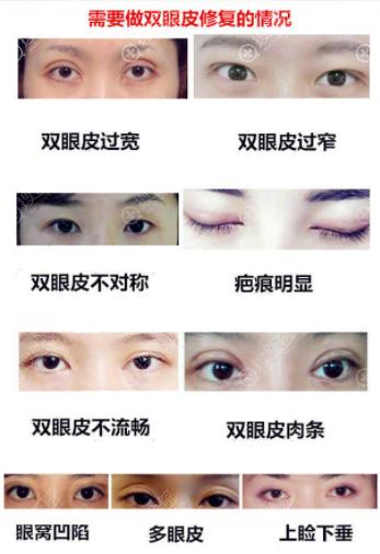 双眼皮修复类型
