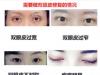 双眼皮开宽了可以修复改窄吗?修复全切双眼皮成功率有多大