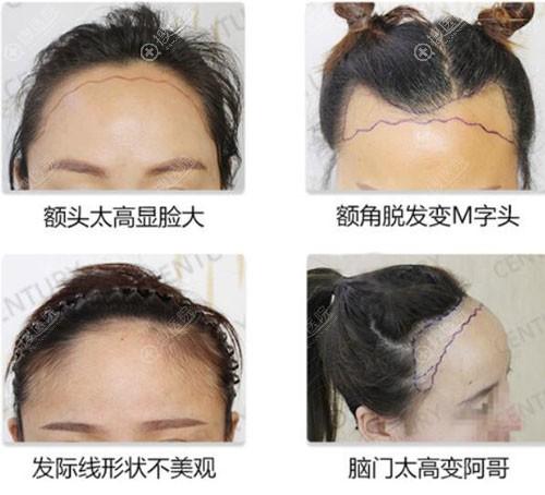 种植发际线类型