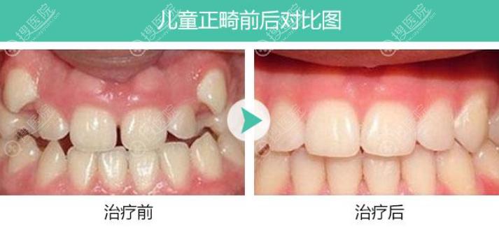 北京维恩牙齿矫正对比效果