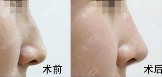 驼峰鼻矫正前后图片