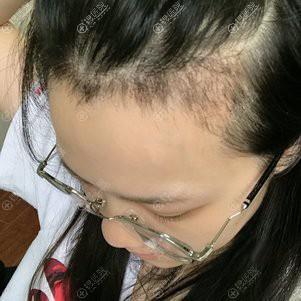 植发30天后效果