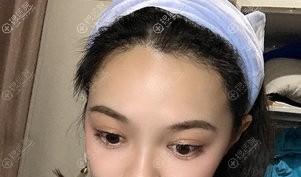南宁贞韩种植发际线效果